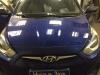 Установка автомагнитолы на а/м Hyundai Solaris.jpg